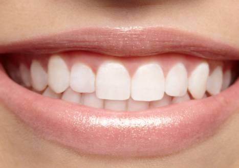 Wybielanie zębów trzonowych